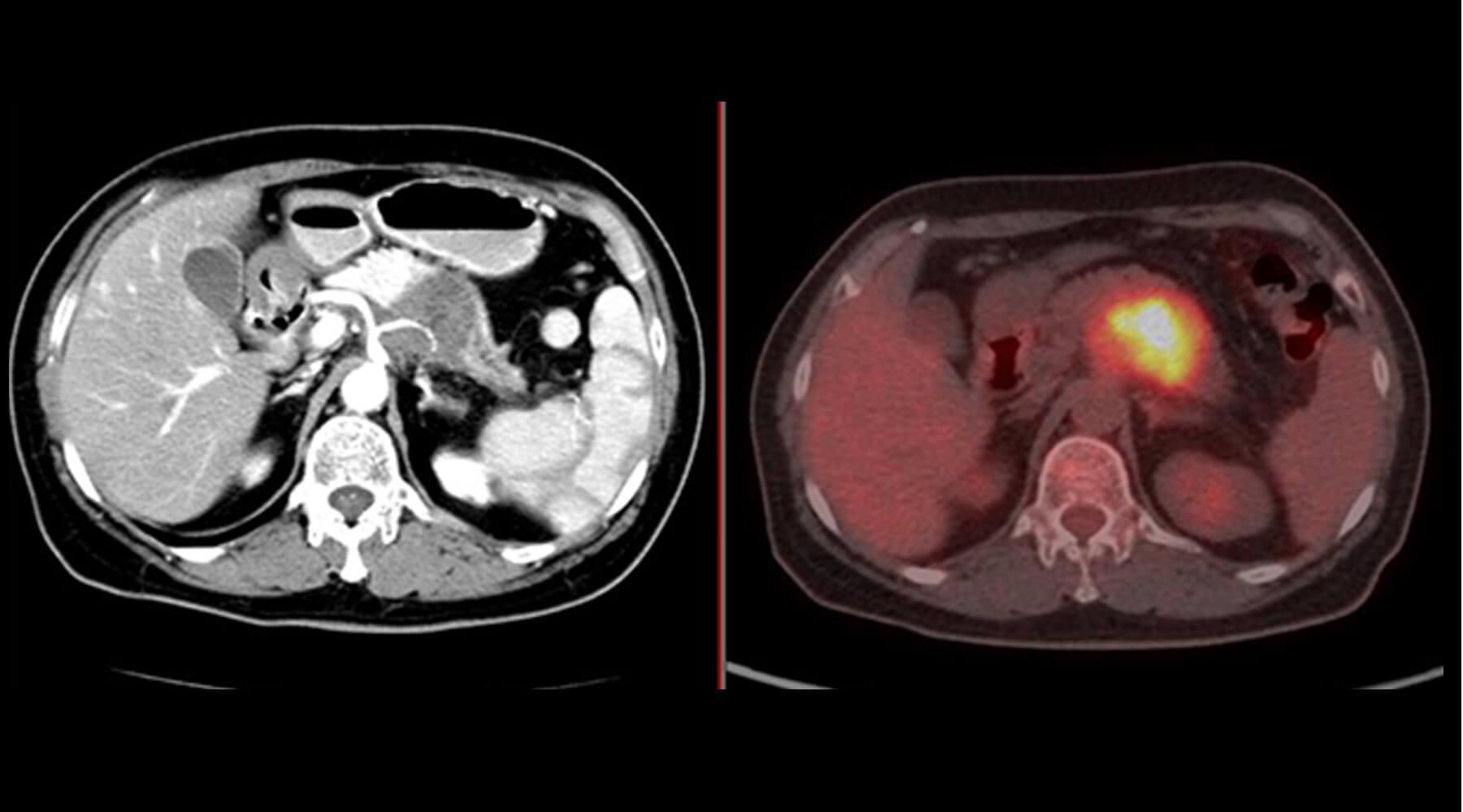 治療前CTおよびPET-CT