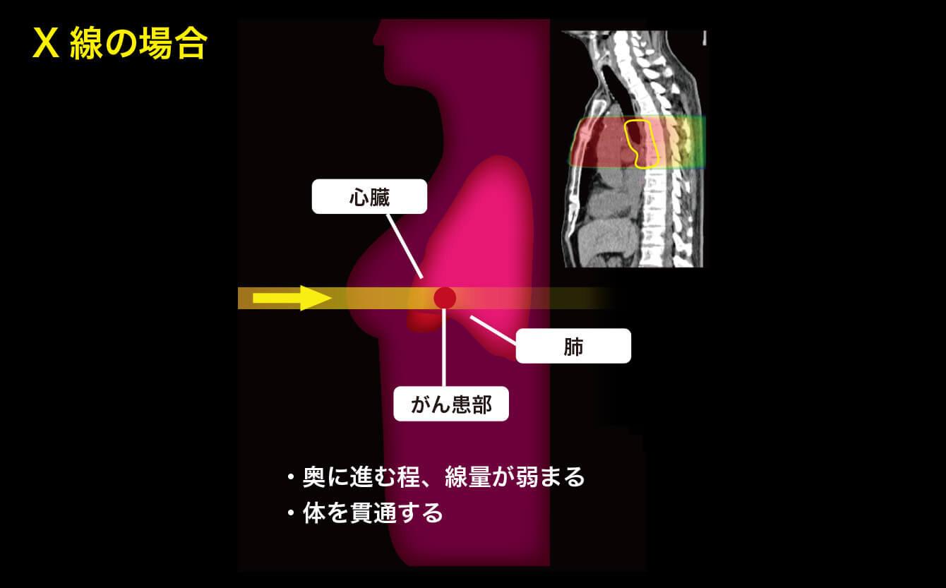X線の場合