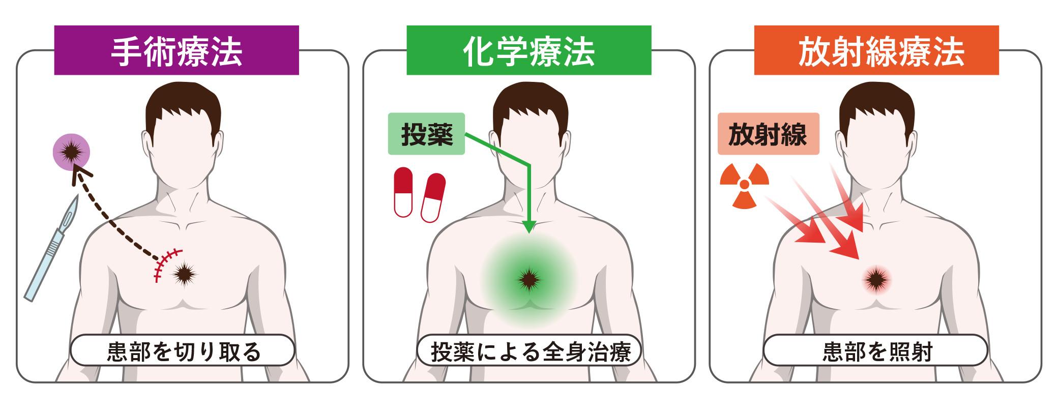外科・放射線選択肢
